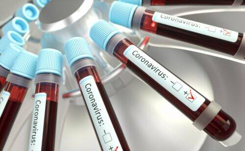 coronavirus-2-1024x632